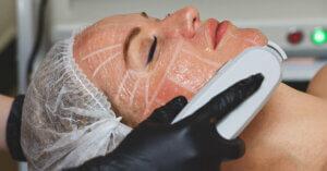 HIFU treatment on lady