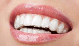 Short term orthodentics | Beauty Tweakments
