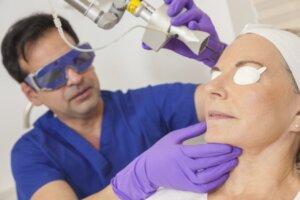 Woman having a fractional laser treatment
